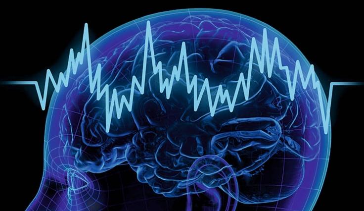 Healthcare-Science-Neurophysiology